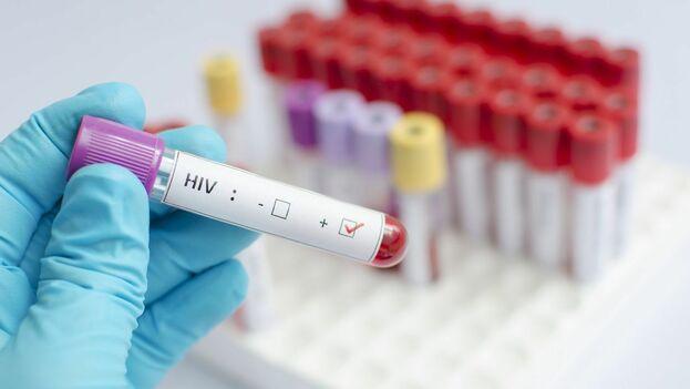 Ahora mismo no existe ninguna vacuna que evite la infección, aunque sí existen medicamentos retrovirales y que evitan su contagio. (CC)