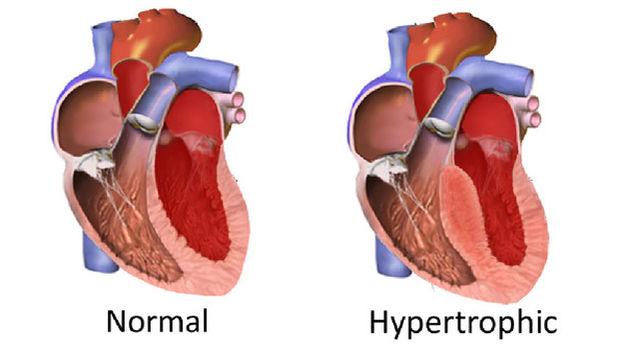 Diferencia entre un corazón normal y otro con hipertrófia. (IBS, South Korea)