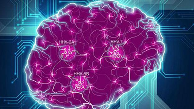 El cerebro se muestra como una red compleja de interacciones, con la interrupción de las conexiones por las especies virales clave (HHV-6A, HHV-6B, HHV-7) identificadas en este estudio. (Readhead et al.)