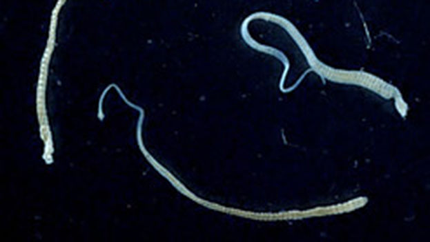 La 'Hymenolepis nana', una lombriz muy común en los seres humanos, puede transmitir células cancerosas. (CC)