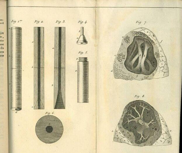 En 1816, el médico francés René Laennec inventó el estetoscopio para diagnosticar a personas con tuberculosis. (Wikimedia Commons)