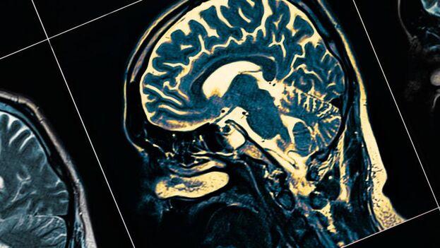 """""""La idea es desarrollar una manera precisa de llegar a zonas del cuerpo humano difíciles de alcanzar"""", advierte un científico. (Istockphoto)"""
