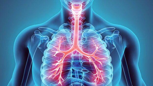 La fibrosis quística ataca cuando se heredan dos copias mutadas del gen. (Archivo)