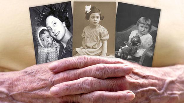Una de las manifestaciones básicas del alzhéimer es la pérdida de memoria. (Fotolia)