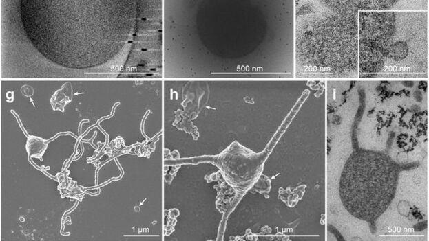 El microorganismo conocido como 'Lokiarchaeota' pertenece a una nueva categoría de las arqueas. (BioRxiv)