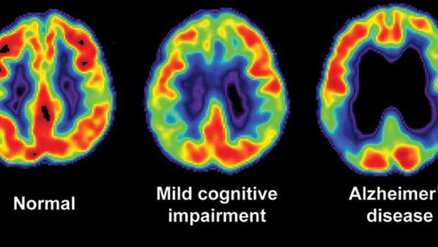 Una de las señales tempranas que alerta sobre el desarrollo de esta enfermedad es la aparición de fragmentos de beta-amiloides en el cerebro.