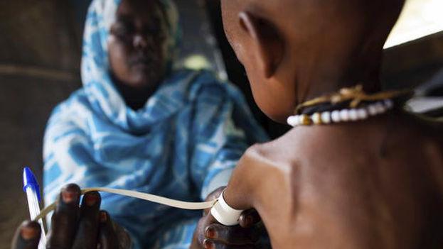 Los trastornos asociados a la malnutrición se transmiten de padres a hijos. (A. González/Unamid)