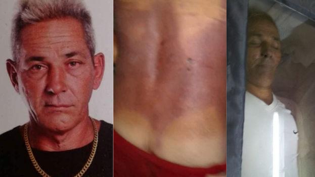 Alejandro Pupo Echemendía, presuntamente asesinado por oficiales de la policía cubana. (Cortesía)