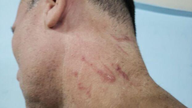 Fotografía publicada por José Daniel Ferrer en la que se muestran las huellas violentas de su detención este jueves. (Twitter/@jdanielferrer)
