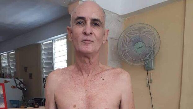 Estado de Roberto Quiñones tras salir de la cárcel. (Rolando Rodríguez Lobaina)