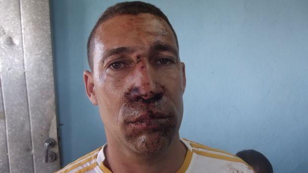 Yriade Hernández Aguilera, activista golpeado este domingo 11 de octubre. (Unpacu)