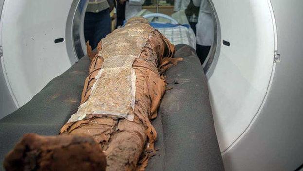 Una enfermedad o malnutrición en las momias se desvelará con un TAC en el quirófano del Hospital de Asuán. (UGR)