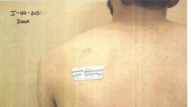 Una de las fotos 198 fotografías que ha publicado el departamento de Defensa de EE UU de las investigaciones sobre abusos sufridos por detenidos en las guerras de Irak y Afganistán.