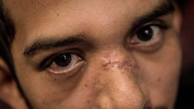 Juan Bosco Rivas Martínez muestra la cicatriz que le dejó la bala de AK que perforó su rostro. (Carlos Herrera/ Confidencial)