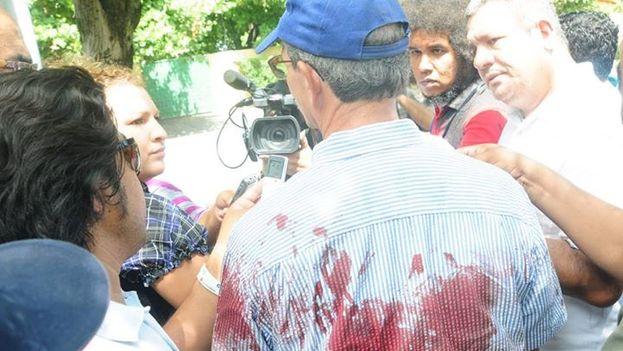 El opositor Partido Liberal Independiente sostiene que sus simpatizantes fueron golpeados sin que los agentes antidisturbios intevinieran. (Facebook)