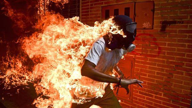 José Víctor Salazar, un manifestante antigubernamental, corriendo en llamas tras quemarse accidentalmente en Caracas. (EFE/Ronaldo Schemidt)