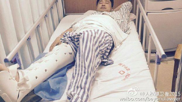 El abogado Xie Yang tras recibir una agresión. (CHRD)