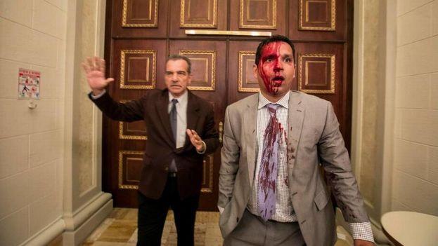 El diputado Luis Stefanelli (i) y el diputado Jose Regnault (d) permanecen en un pasillo de la Asamblea Nacional luego de una disputa con manifestantes en Caracas, Venezuela. (EFE)