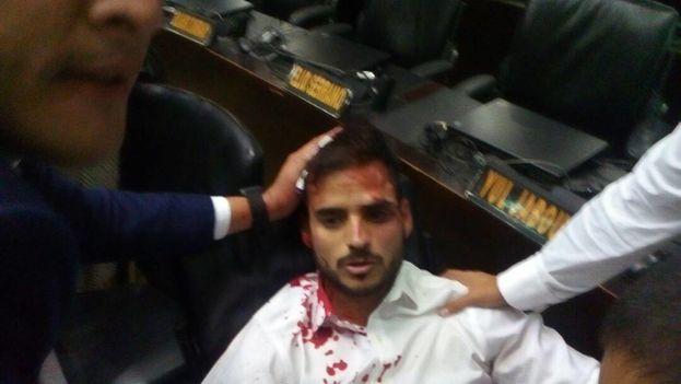 Los hombres, que se identificaron como afectos al chavismo, robaron y golpearon con palos a varios periodistas, asistentes y legisladores. (Asamblea Nacional)