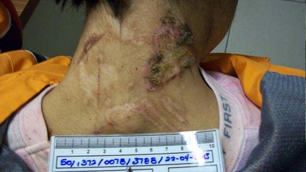 La joven mexicana fue encadenada y golpeada hasta que logró escapar. (EFE/PGJDF)