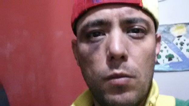 El periodista venezolano Jesús Medina denunció el trato sufrido durante los tres días de cautiverio. (@jesusmedinae)