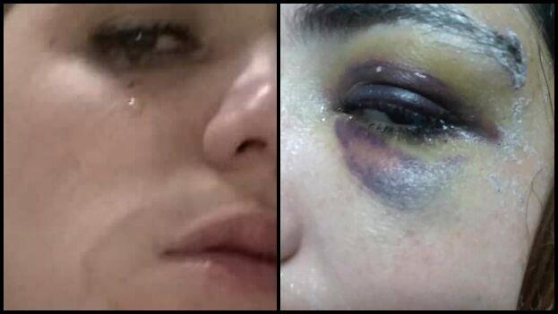 La joven, Virgen Martínez, fue agredida después de rechazar las pretensiones sexuales de un desconocido que la abordó en la calle. (La Hora de Cuba)