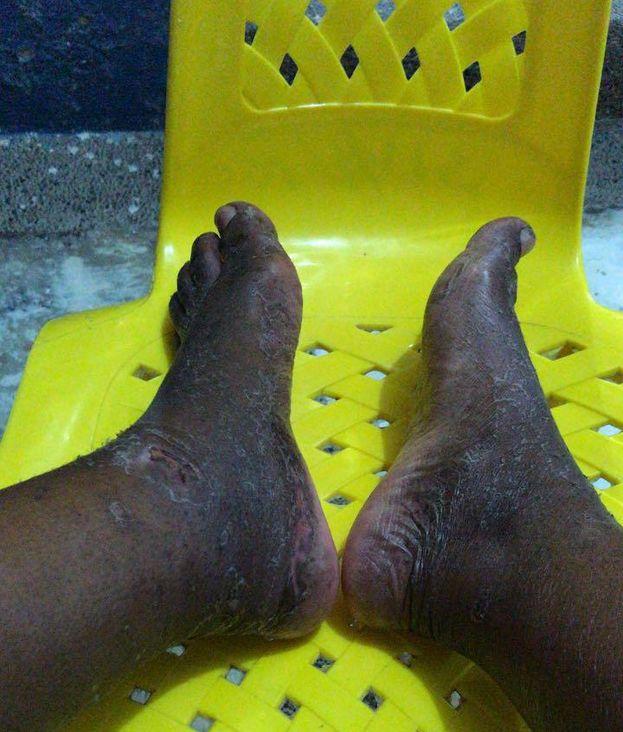 Los pies de Dayana Suárez tras llegar a México, después de un mes de camino para pedir asilo político en la frontera de Estados Unidos. (Cortesía)