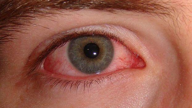 La conjuntivitis vírica es la peor variante de esta enfermedad, y dentro de ella, la hemorrágica, que afecta a varios países del Caribe. (CC)