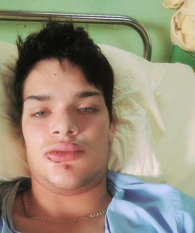 """El informe que le realizaron en el hospital, y que registraba las lesiones sufridas en la cara y la boca, se perdió """"convenientemente"""". (Cortesía)"""